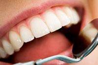 Detartrasi - Rimozione tartaro - Pulizia dei denti